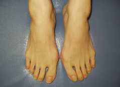 足指が細い